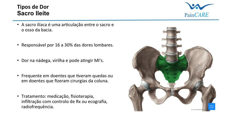 tratamentul artrozei sacroiliace